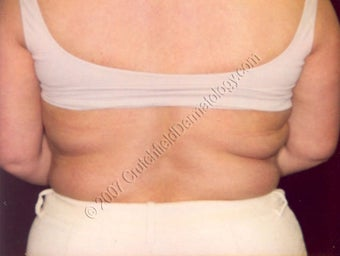 LipoDissolve injections to back fat before 9739