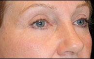 Eyelid Surgery after 373477