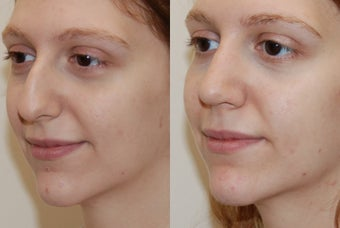 Rhinoplasty Surgery. 5 weeks post-op.