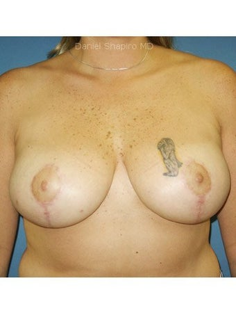 Bilateral mastopexy  after 249979