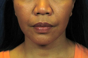 Chin Implant with Laser Facelift after 342973