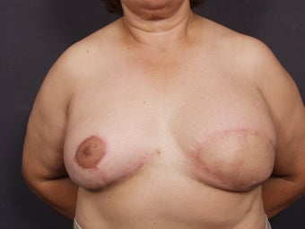 56 Year Old Female for Breast Reconstruction after 643265