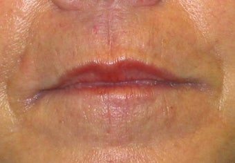 Juvederm effacement of perioral lines after 84413