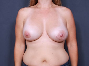 Breast Implant Revision after 461510