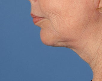 Chin Implant after 504101