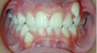 Teen Orthodontic Treatment (case #1BG) before 224559
