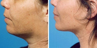 Chin Liposuction before 640678