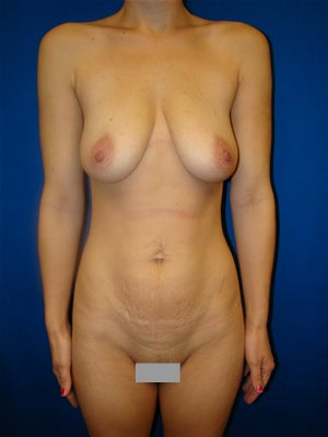 Tummy Tuck, Breast Augmentation with Breast Lift before 131961