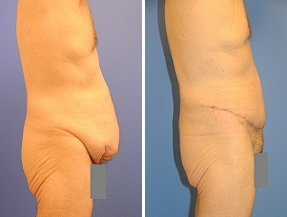 Abdominoplasty before 356418
