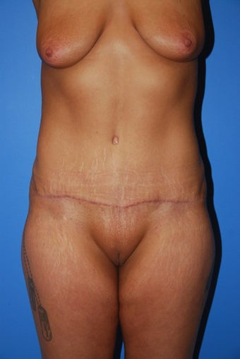 Abdominoplasty  after 342442