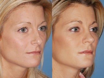 Revision rhinoplasty 334284
