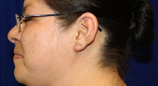 Ear lobe Keloid  494478