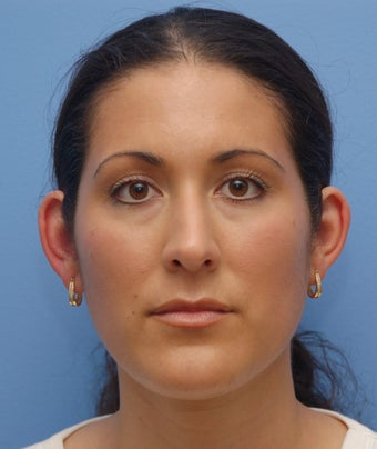 Otoplasty before 273231