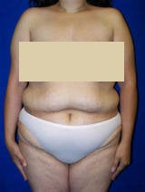 Extended Tummy Tuck (abdominoplasty) before 128663