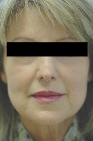 Laugh Lines with Juvederm in Anaheim, CA before 204771