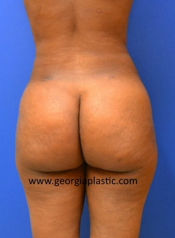 Brazilian Buttock Lift after 440724