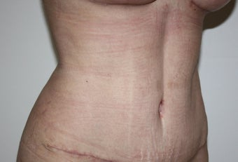 abdominoplasty after 375801