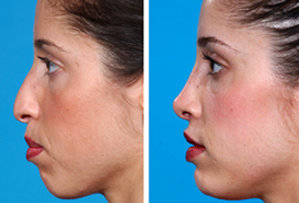 Rhinoplasty and Chin Implant after 6673
