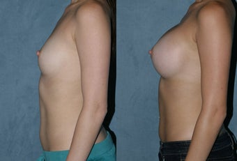 Breast Augmentation - Silicone Implants after 118037
