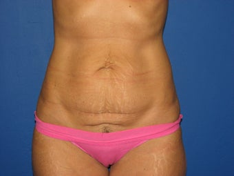 Tummy tuck before 572712