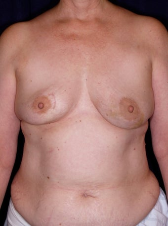DIEP Flap Breast Reconstruction before 523524