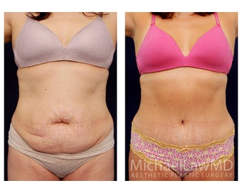 Tummy Tuck with Liposuction before 391594