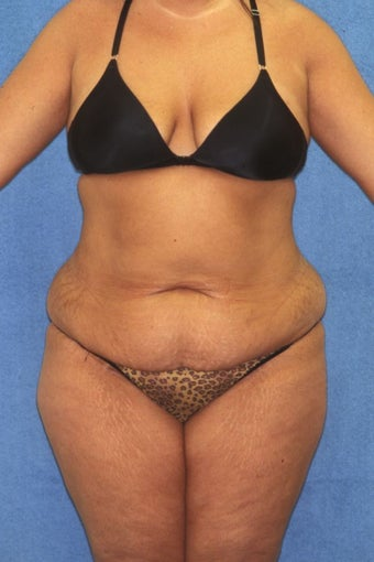Tummy Tuck with Liposuction before 411595