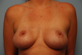 Bilateral Breast Reconstruction with Acellular Dermal Graft and Implants before 259123