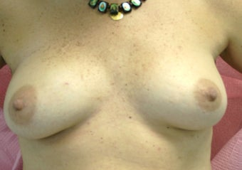 Breast Reconstruction before 517542