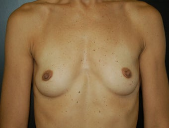 Breast Augmentation before 466885