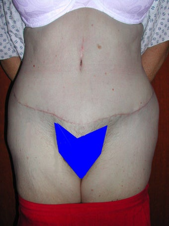 Extended Tummy Tuck after 119745
