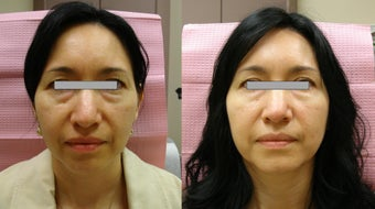 Botox Cosmetic before 363739