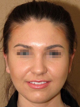 Otoplasty after 571629