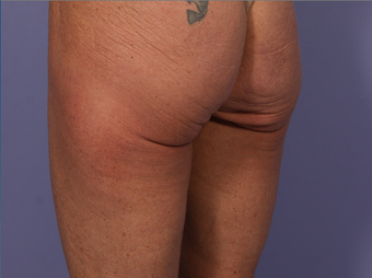 CoolSculpting to Banana Roll/ Upper, Posterior thigh before 563835