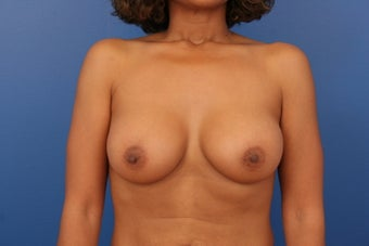 Breast Implants after 466403