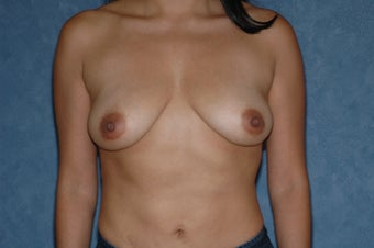 Breast augmentation with lift before 399917