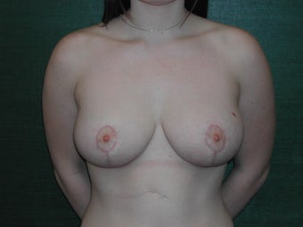 Inferior Pedicle Breast Reduction after 117051