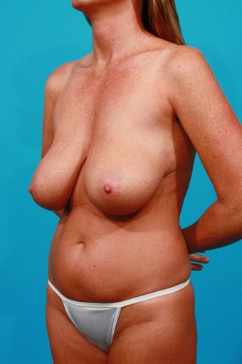 Mommy Makeover: Tummy Tuck, Breast Lift, Flank Lipo before 250635