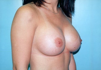 Breast Augmentation (425cc Saline Implants) after 278048