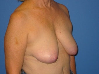 Mastopexy before 510742