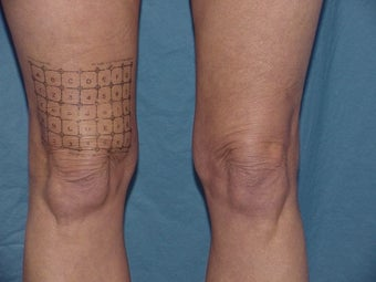 Thermage of kneees before and after before 109790