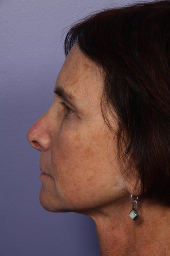 Neck lift after 306413