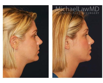 Chin Liposuction 395415