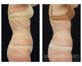 Abdominoplasty - Tummy Tuck 396013