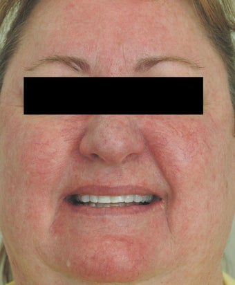 Rosacea Laser Treatment Los Angeles Before and After Pictures before 411345