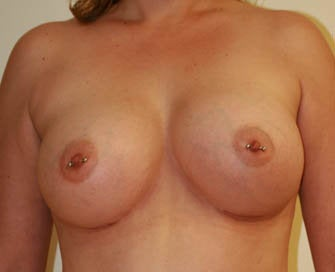 Augmentation Mammaplasty (Breast Implants) after 226487