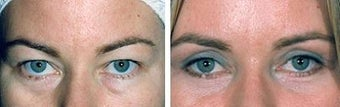 Blepharoplasty before 643214