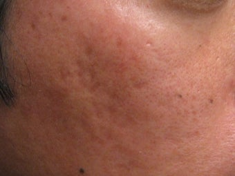 Artefill treatment of Acne Scars after 272001
