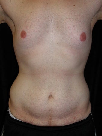 Male Tummy Tuck, Flank Liposuction, Male Breast Reduction before 578191