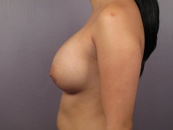 Breast Lift after 311086